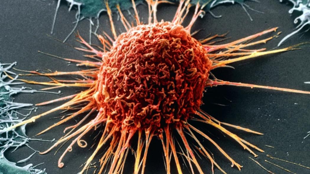 Учёные определили белок, ответственный за агрессивность рака