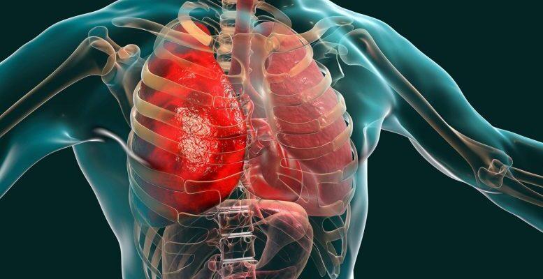 Многие пациенты с COVID-19 вырабатывают иммунные реакции, атакующие собственные ткани и органы