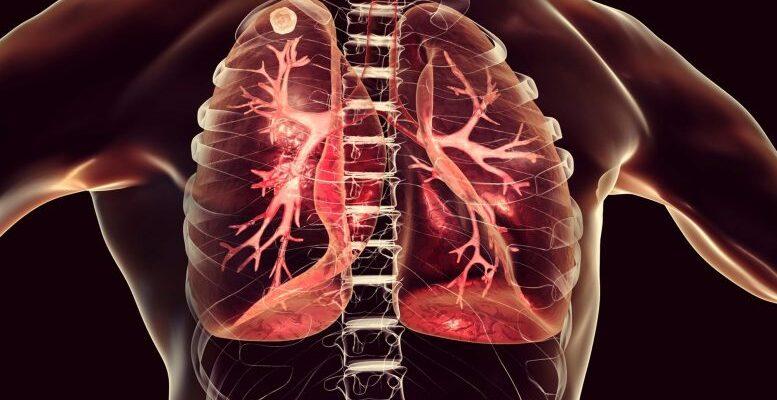 Новый атлас клеток патологии COVID-19 показывает, как коронавирус «сеет хаос в легких»