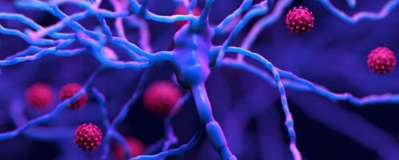 Воспаление мозга от SARS-CoV-2 похоже на воспаление от болезни Альцгеймера