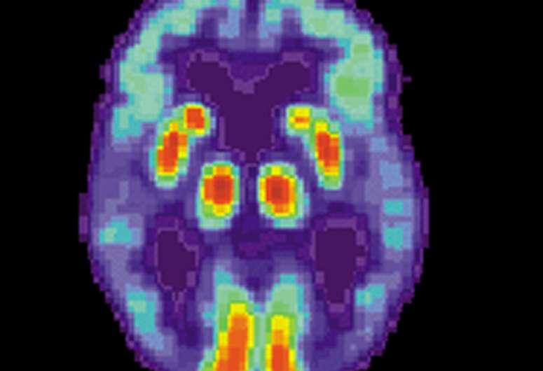 Исследование показывает, как COVID-19 связан с когнитивными нарушениями, подобными болезни Альцгеймера