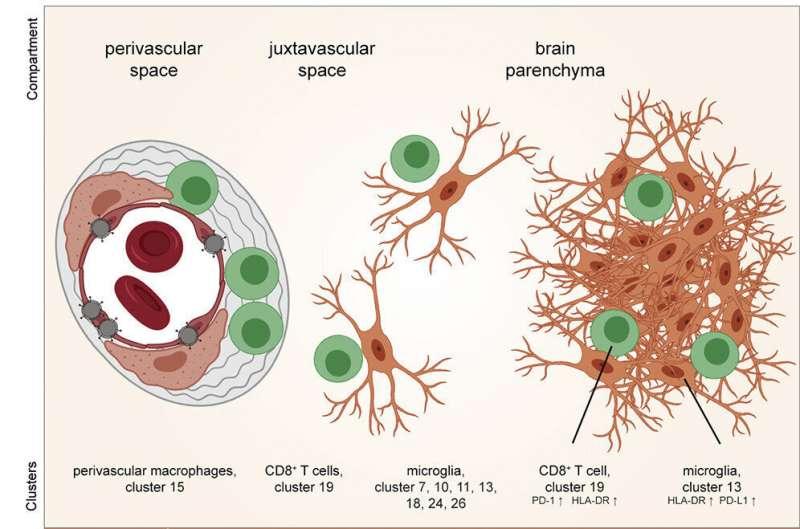 COVID-19 может вызвать сильное воспаление головного мозга