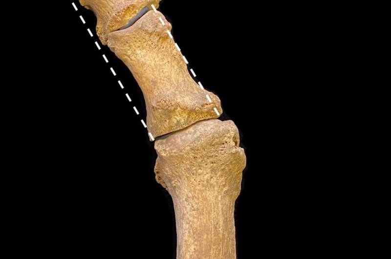 Мода на остроконечные туфли спровоцировала эпидемию бурситов в средневековой Британии