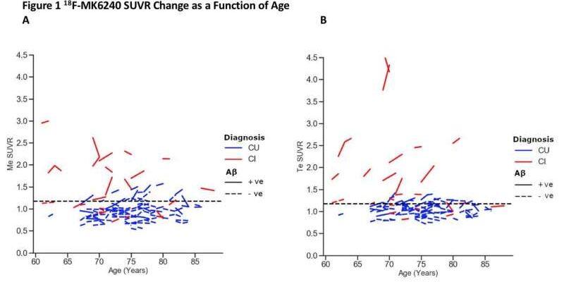 Новый ПЭТ-индикатор обнаруживает признаки болезни Альцгеймера за годы до появления симптомов
