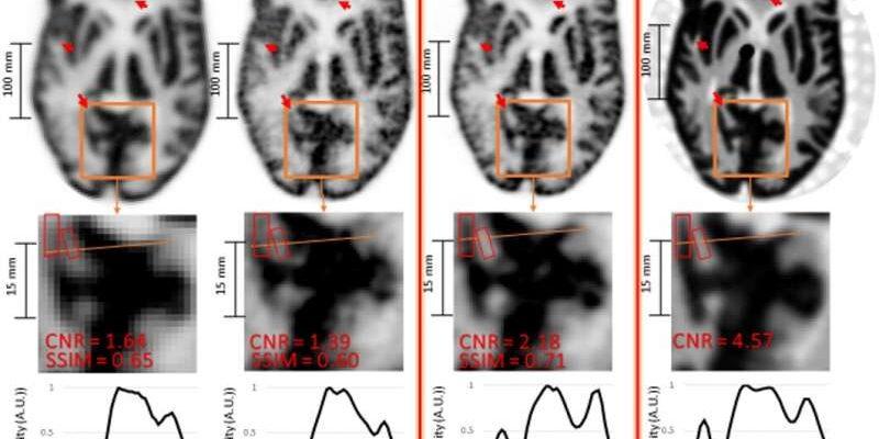 Новый метод сверхвысокого разрешения позволяет получать более детальные изображения мозга