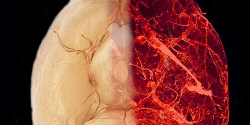 Исследователи открыли новые механизмы ожирения и гипертонии