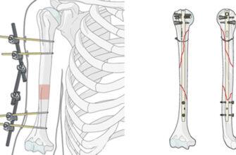 Новый композитный материал может заменить металлические пластины при лечении сложных переломов