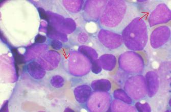 Устранение РНК-связывающего белка улучшает выживаемость при агрессивном лейкозе
