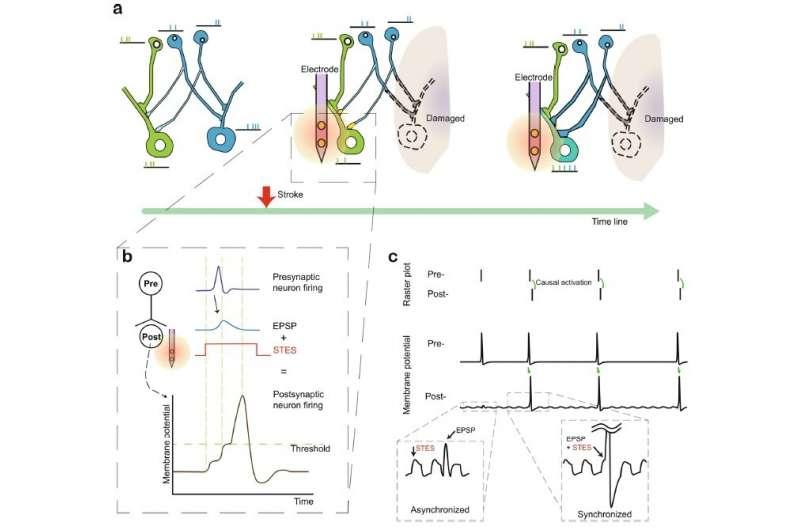 Электростимуляция малой мощности может помочь в реабилитации после инсульта