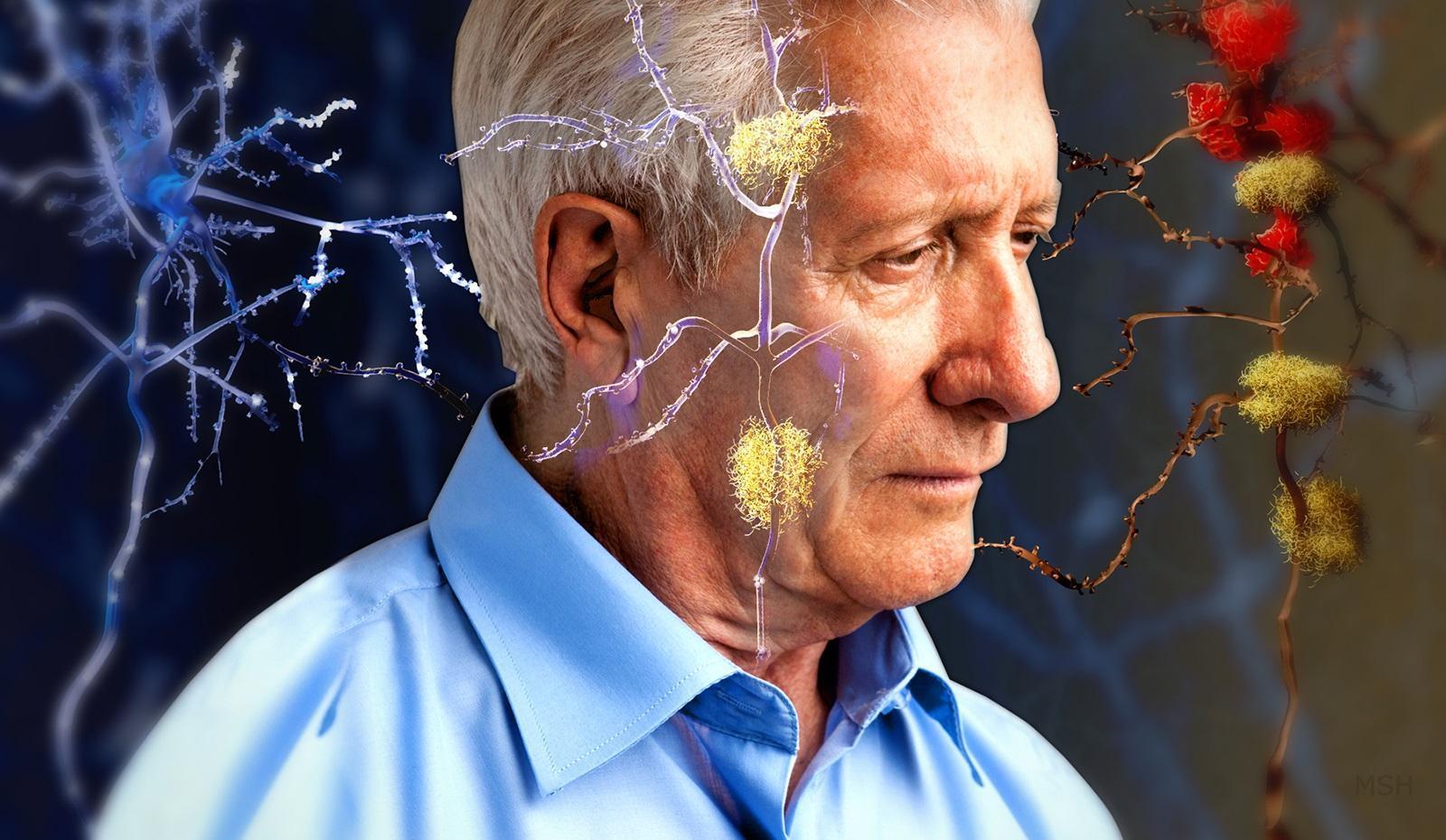 Микробы способны обратить вспять старение мозга